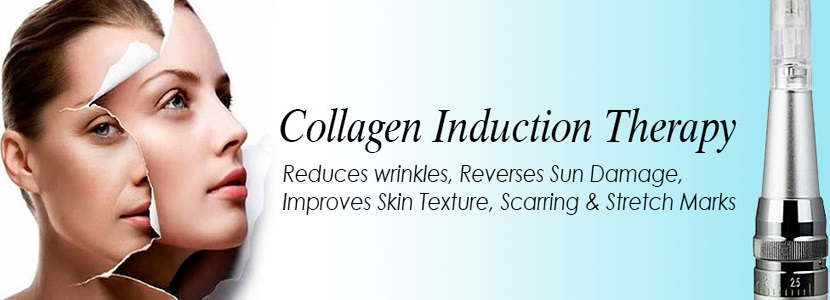 Another on microneedling also called collagen induction therapy